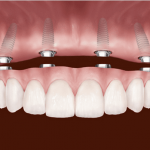 dental implants in Sherwood Park